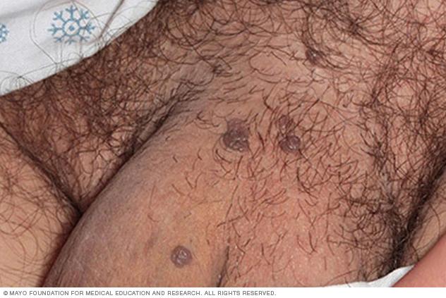 ویروس پاپیلومای انسانی (HPV) در مردان