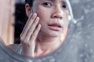 درمان انواع لکه های قهوه ای روی پوست بدن