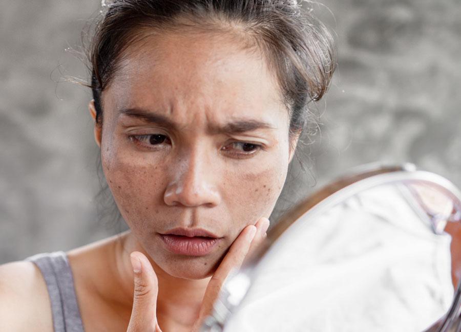 تشخیص لکه های قهو ه ای روی پوست بدن
