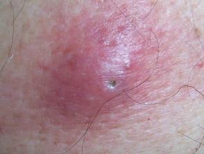 کیست اپیدرموئید 9