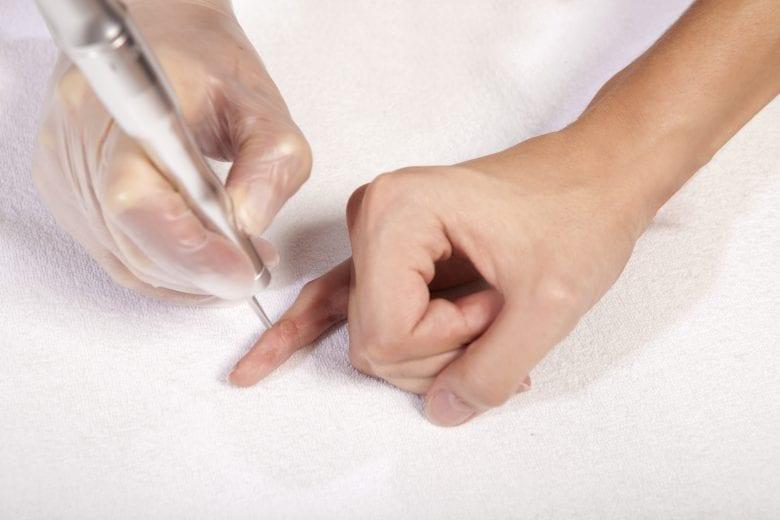 لیزر زگیل دست