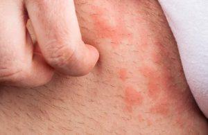 عفونت قارچی کشاله ران چیست؟