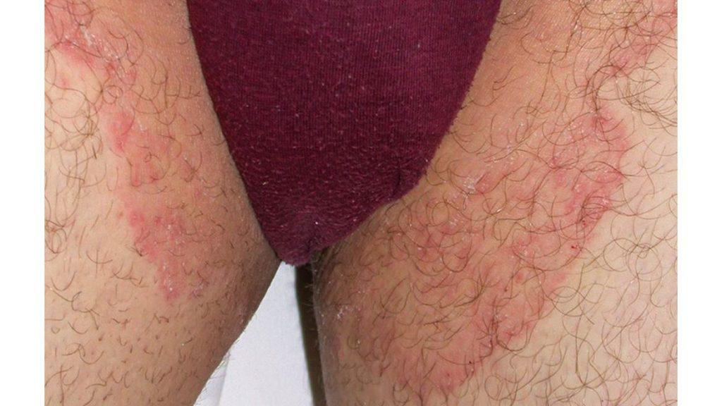 عفونت قارچی کشاله ران