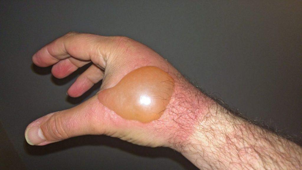 درمان تاول دست