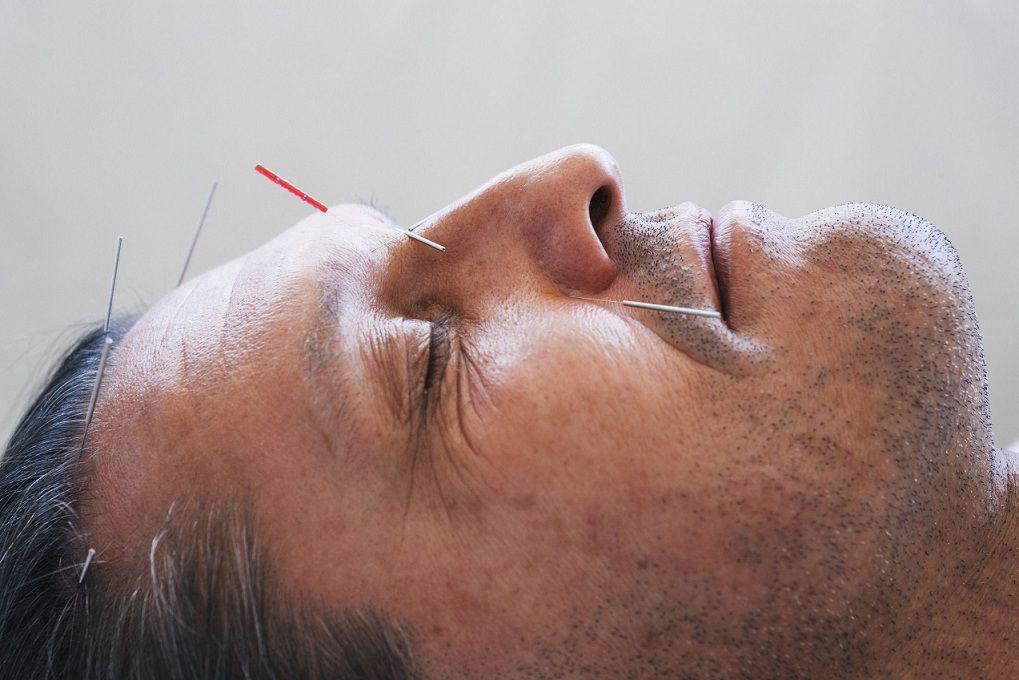 کاهش ریزش موی ریش با طب سوزنی