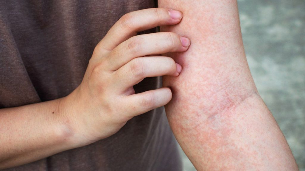خارش پوست
