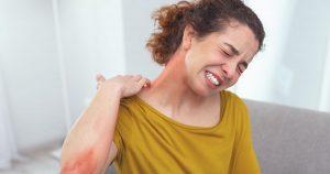بیماری های پوستی ناشی از کرونا در بزرگسالان
