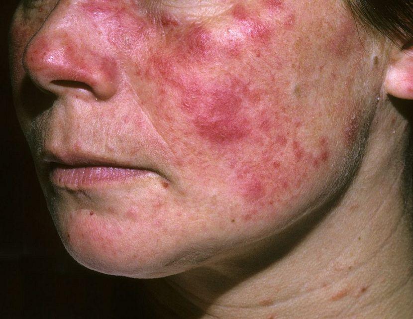 تأثیر بیماری لوپوس در زنان