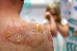 بیماری پمفیگوس ولگاریس